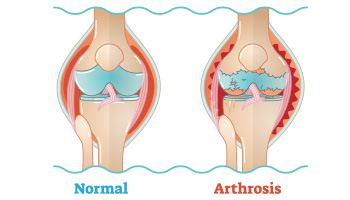 Durch Arthrose geschädigtes Gelenk