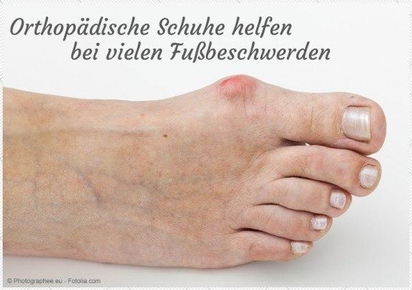 tessamino-blog-orthopaedische-schuhe